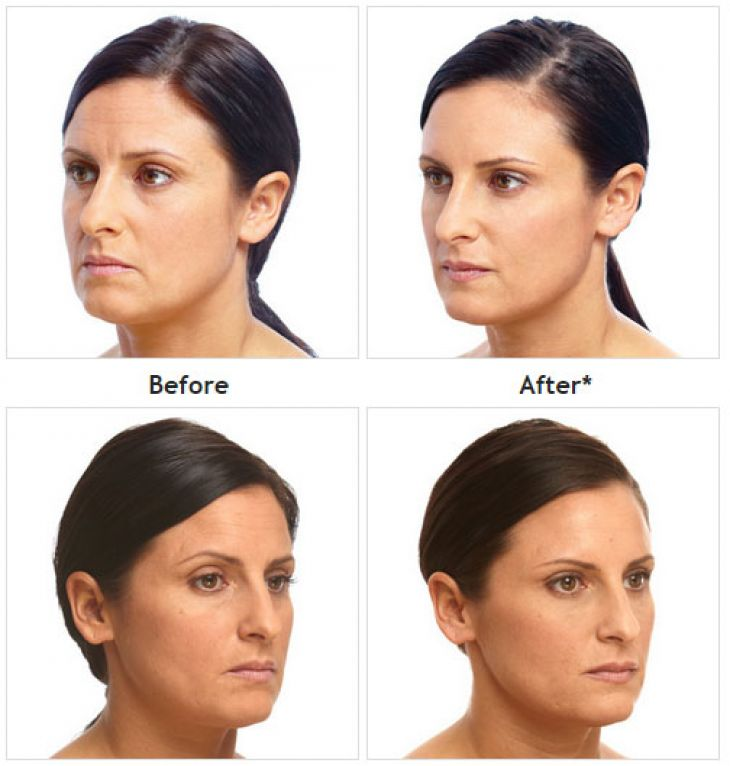 Juvéderm before and after treatment