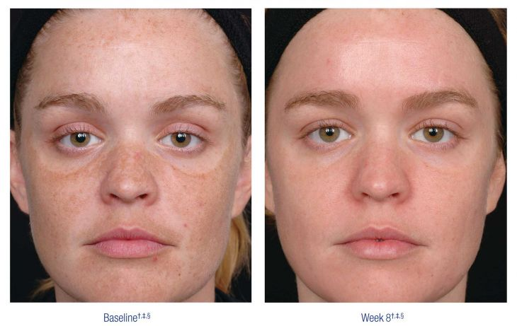 Nu Derm Before and After