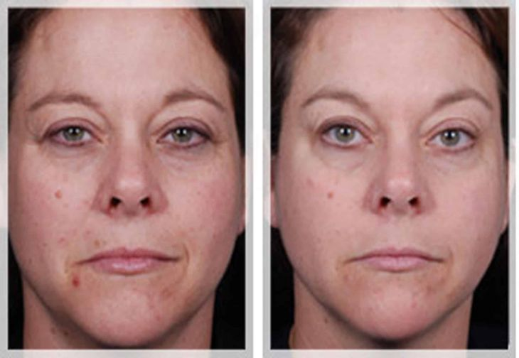 Melasma and Pigmentation Treatment before and after