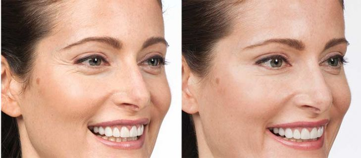 Botox before and after treatment